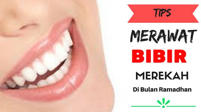 Tips Merawat Bibir Merekah Di Bulan Ramadhan