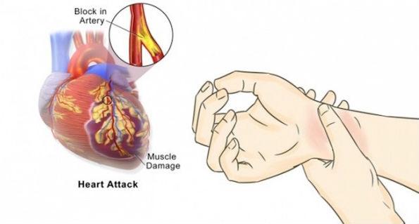 Cara Simpel Cegah Serangan Jantung