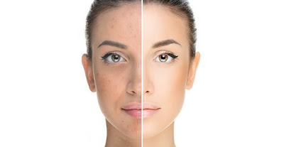 acne treatment available
