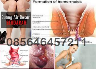 Daun Ungu (Graptophyllum pictum) Obat Wasir (Hemoroid)