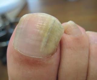 nagelbettentzündung-zeh-eingewachsener-zehennagel-jenncosmetic