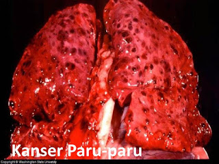 kanser paru-paru