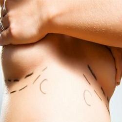 Cirurgia para reduzir o risco de câncer de mama