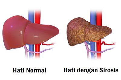 Foto gambar perbandingan hati hepar liver sehat dan hati dengan sirosis, vena cava, lobus, anatomi, vena porta, vena hepatica, aorta abdomialis, vena abdominalis, arteri hepatica, caudatus, peritonium, diafragma, sinistra, dekstra, lien, nodule, limpa, spleen, fibrosis, ligamentum falsiform, vena cava, duktus biliaris