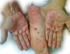 Terapi Pengobatan Demam Berdarah