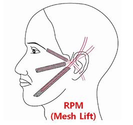 Wonjin Beauty Medical Group's Almighty Mesh Lifting