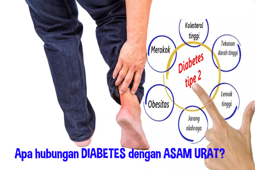 Risiko Diabetes Akibat Asam Urat