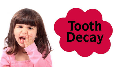 http://kidsdental.in/tooth-decay-treatment.html