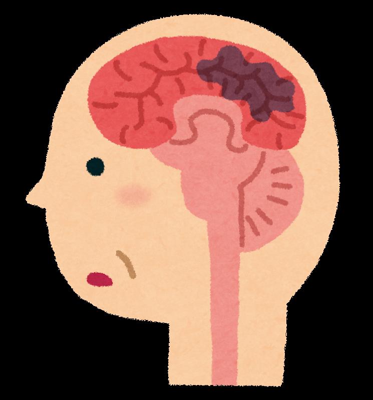 認知症の脳のイラスト(脳血管性)