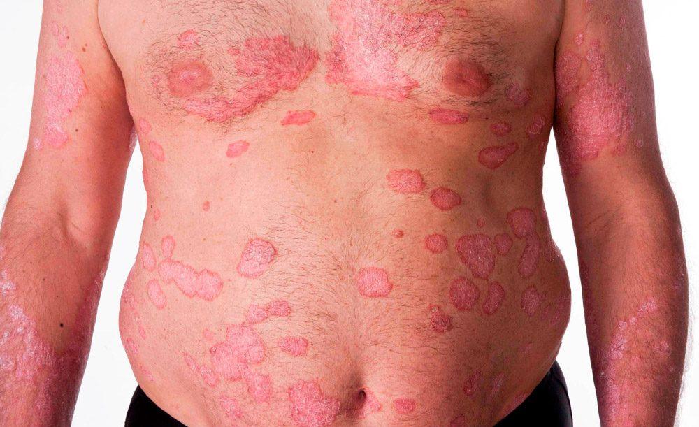 La crema de la psoriasis con el zinc