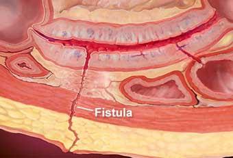 Enterocutaneous fistula Symptoms, Causes, Calssification, Complications, Treatment