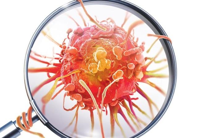 10 sintomas inusitados do câncer que frequentemente negligenciados