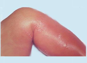 Como limpiar una celulitis infecciosa