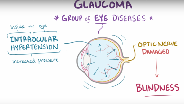 Things you need to know about glaucoma