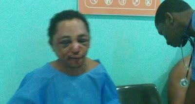 Reos golpean salvajemente a hombre acusado de matar tía de fiscal