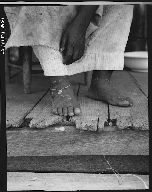 Fifty-seven year old sharecropper woman. Hinds County, Mississippi. Thin dimes around the ankles to prevent headaches. Dorothea Lange, June 1937