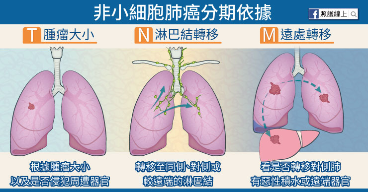 非小細胞肺癌分期依據