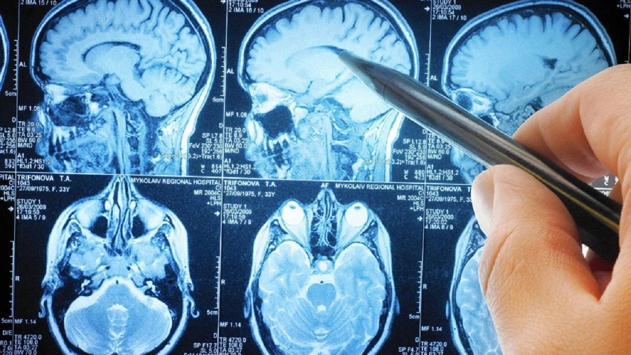 El Cerebro Acerca Sus Regiones Para Enfrentar Tareas Complejas