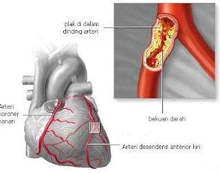 Hubungan Hipertensi Dan Gagal Jantung