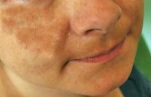 White Spots on the Skin | Natural Vitiligo Treatment