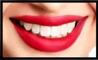 Easy Ways To Naturally Whiten Your Teeth At Home Writer Shemo Health