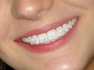 Tư vấn cụ thể giá cả thực hiện niềng răng