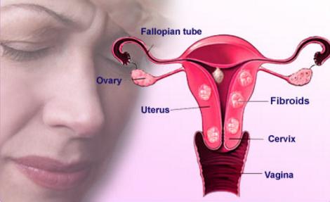 uterine fibroid infertility