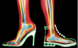 how high heels affect your helath,is high heels dangerous for back,long term effects of wearing high heels,high heels cause sciatica,leg sprain