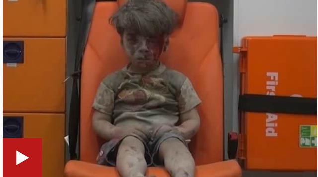 (Video) Krisis Syria : Video Menyayat Hati Kanak-Kanak Aleppo Kesat Kepala Berdarah Jadi Viral, Cetus Kemarahan
