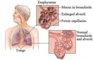 Penyakit Paru Paru Emfisema