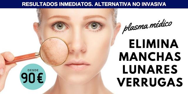 Plasma médico para eliminar manchas