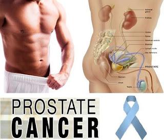 Gejala Kanker Prostat , Ini Tanda Awalnya