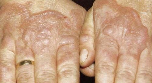 afecciones de la piel por diabetes