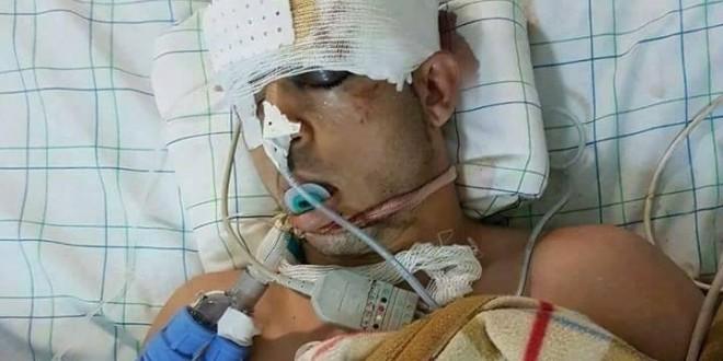 بعد العتابي.. شخص آخر يوجد في غيبوبة بمستشفى الحسيمة منذ 6 أيام