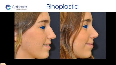 rinoplastia resultado