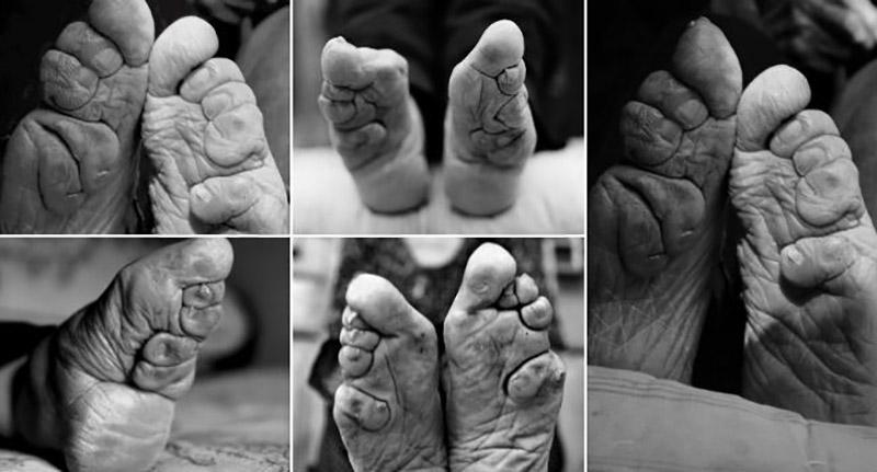 deformação dos pés, chinesas, pés-de-lótus, footbinding