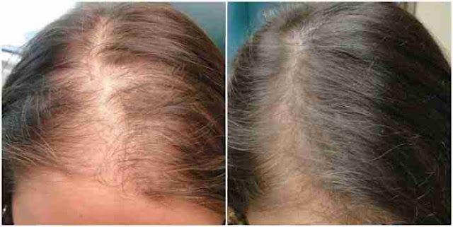 زيت لانبات الشعر مجرب في مقدمة الراس بسرعة