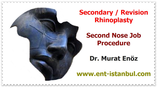 Revision nose aesthetic surgery - Secondary rhinoplasty - Revision nose job in Istanbul - Secondary nose job in Turkey - Secondary nose cosmetic surgery - Tertiary rhinoplasty - Secondary rhinoplasty challenges - Revision rhinoplasty using rib cartilage - Polly beak deformity