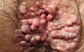 Obat Bintik-bintik Merah Di Bibir Vagina Seperti Daging Tumbuh