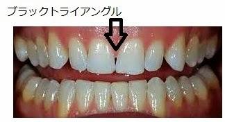 歯医者: インビザライン ブラックトライアングル
