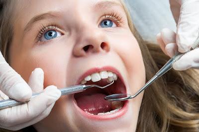 Khi nào cần nhổ răng sữa cho bé?