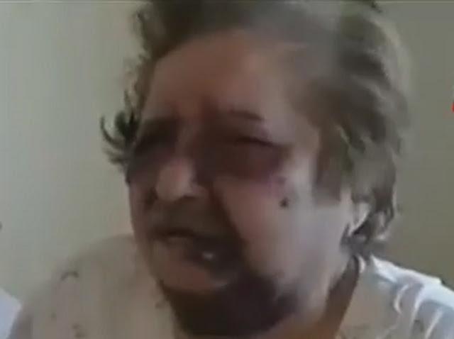 84χρονη