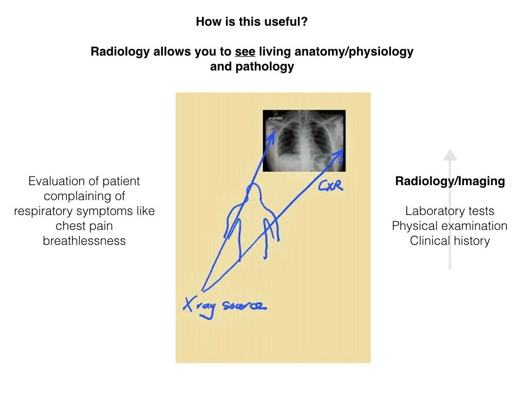 Learning Chest Radiology: Chest: Radiology Anatomy Correlation ...
