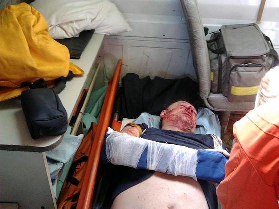 У Кременчуці побили члена партії Саакашвілі