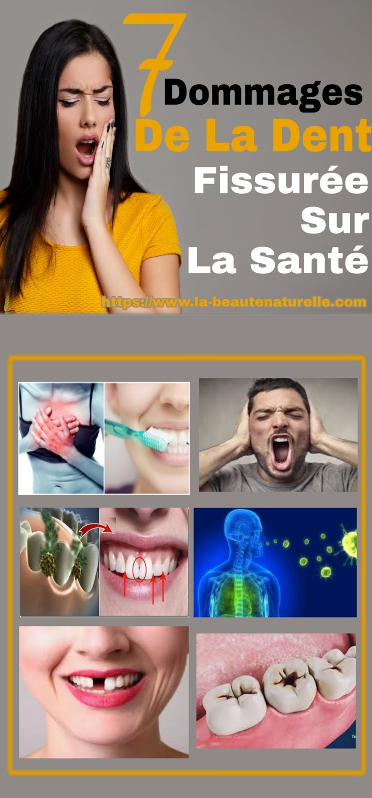 7 Dommages De La Dent Fissurée Sur La Santé