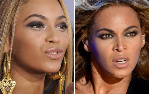 Beyonce antes e depois da cirurgia no nariz