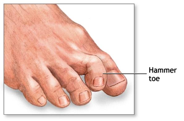 A Hammer Toe