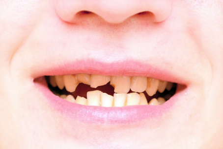 Tips Merawat Gigi Keropos Dengan Mudah