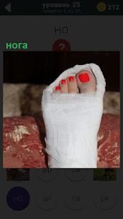 Забинтованная нога девушки с красным педикюром на ногтях