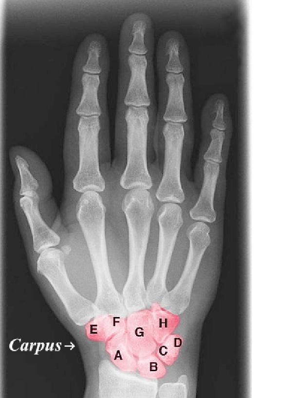 tulang telapak tangan manusia